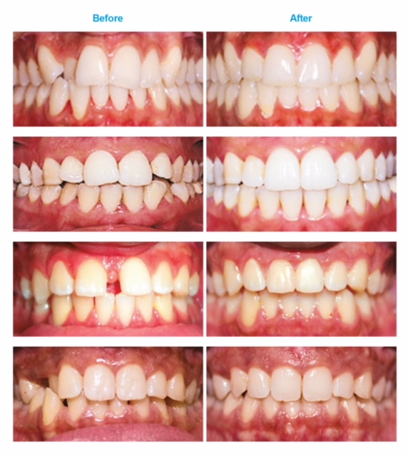 Cases-before-after-images