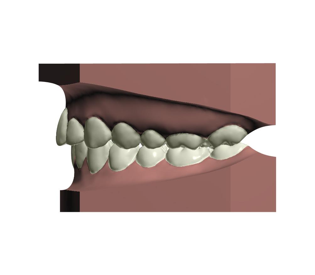 3D Left View - After