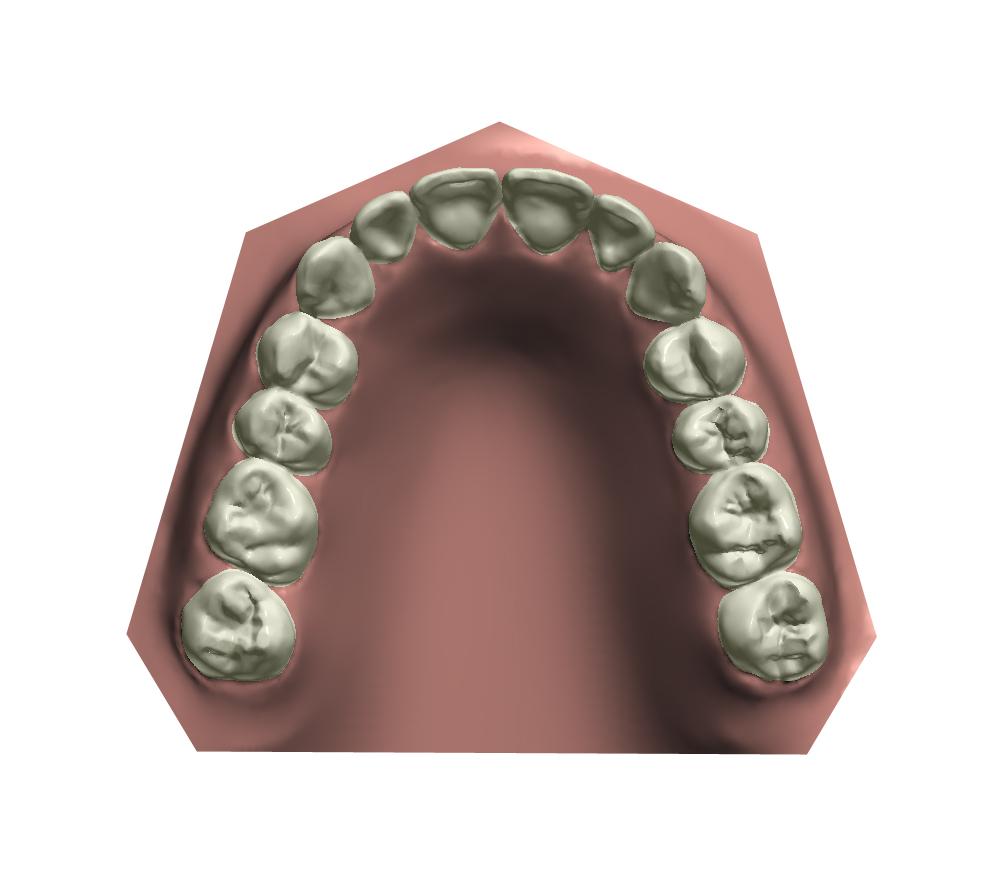 3D Upper View - After