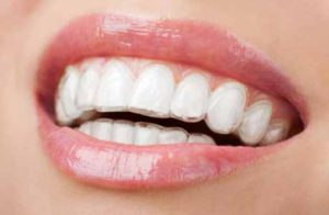 Grin Aligners