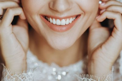 WEAR CLEAR ALIGNERS TO GET PERFECT WEDDING SMILE