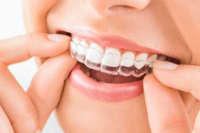 Clear Braces Clear braces for teeth straightening