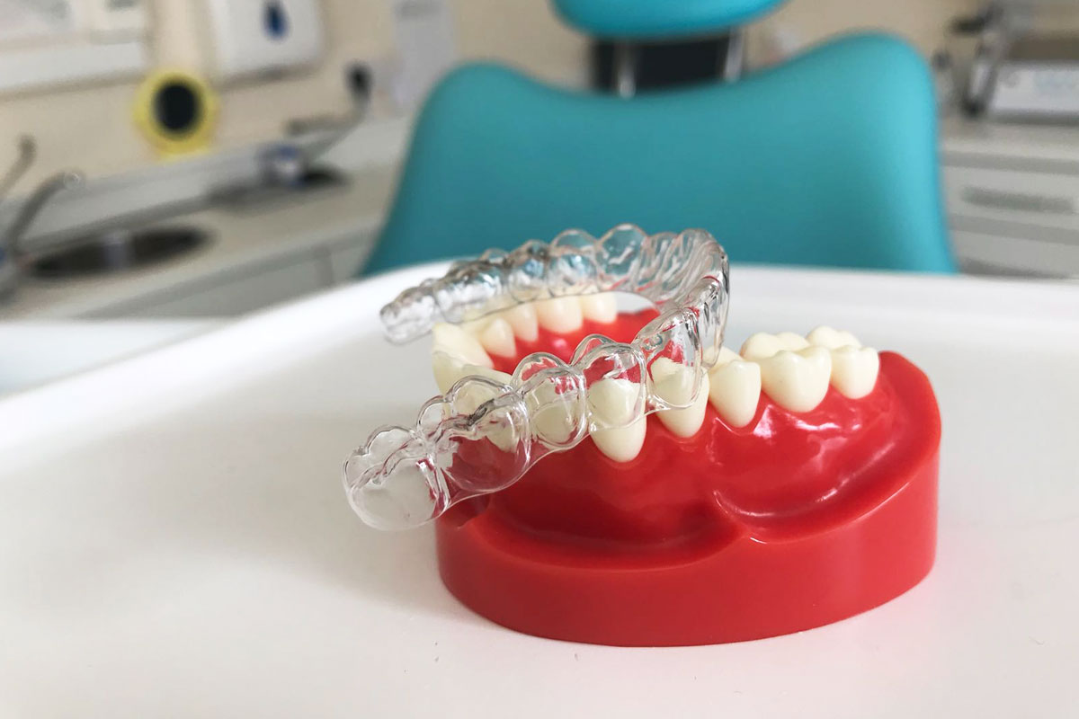 Retainers For Teeth Straightening