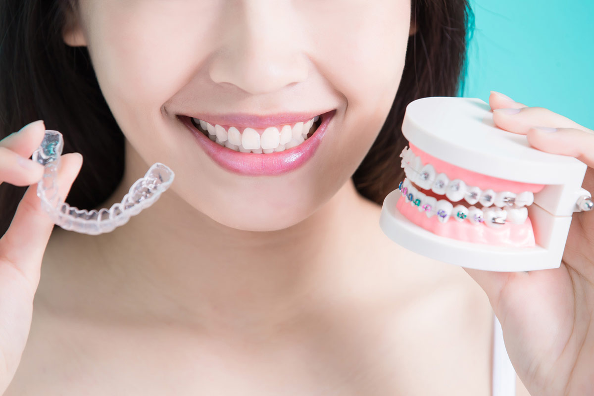 Whether you need Braces
