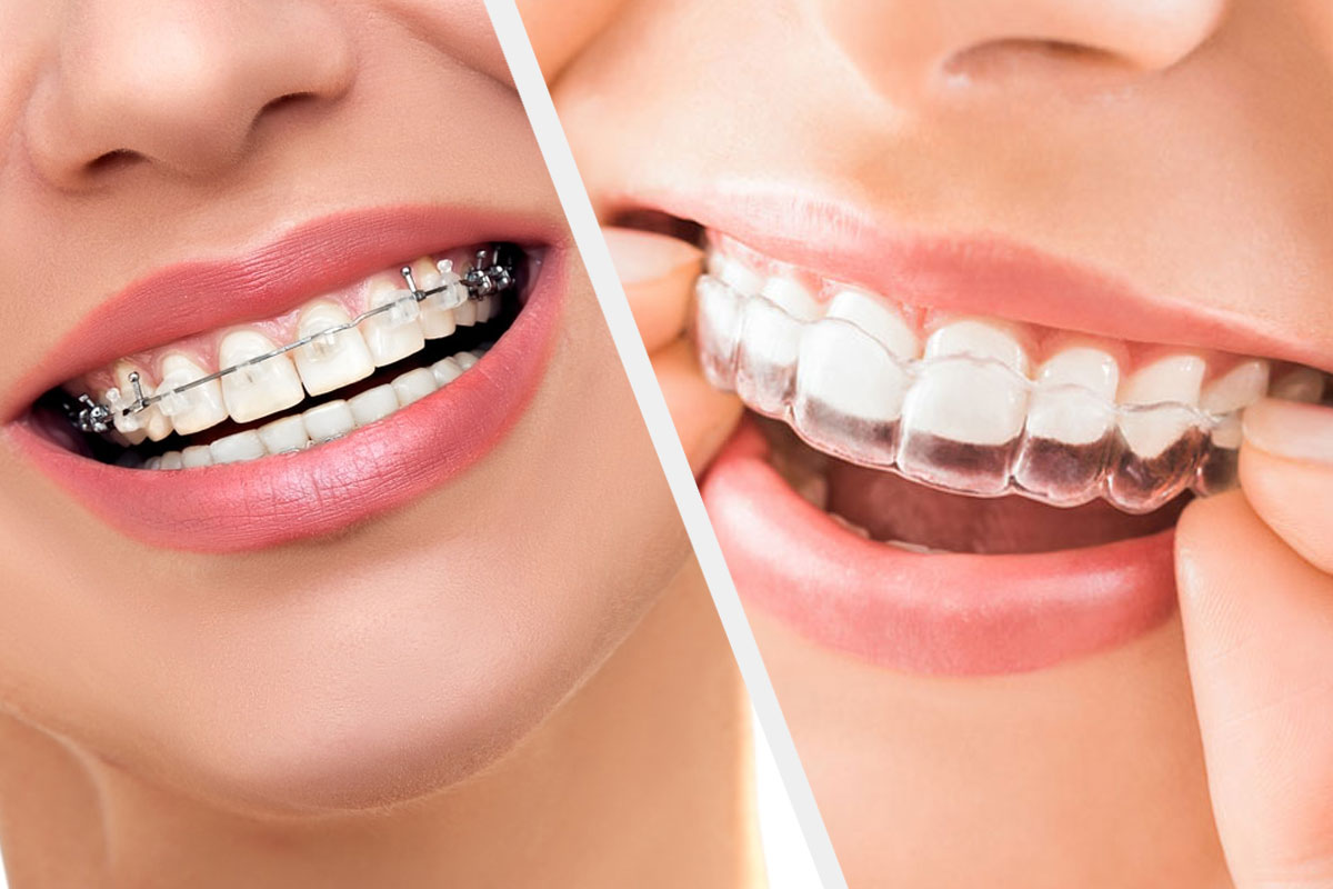What Different about Invisible Braces