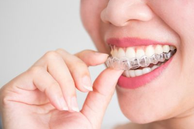 Do Clear Braces actually work?