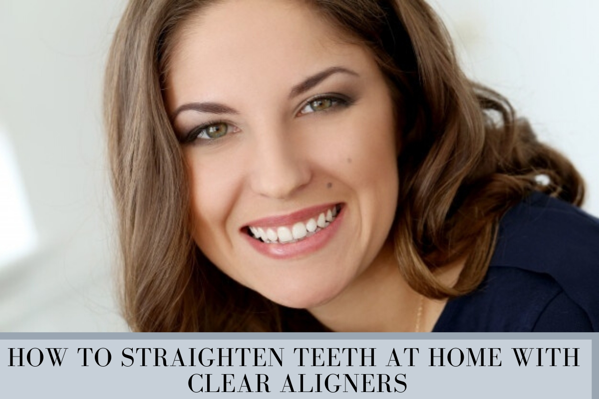How to straighten teeth at home with clear aligners