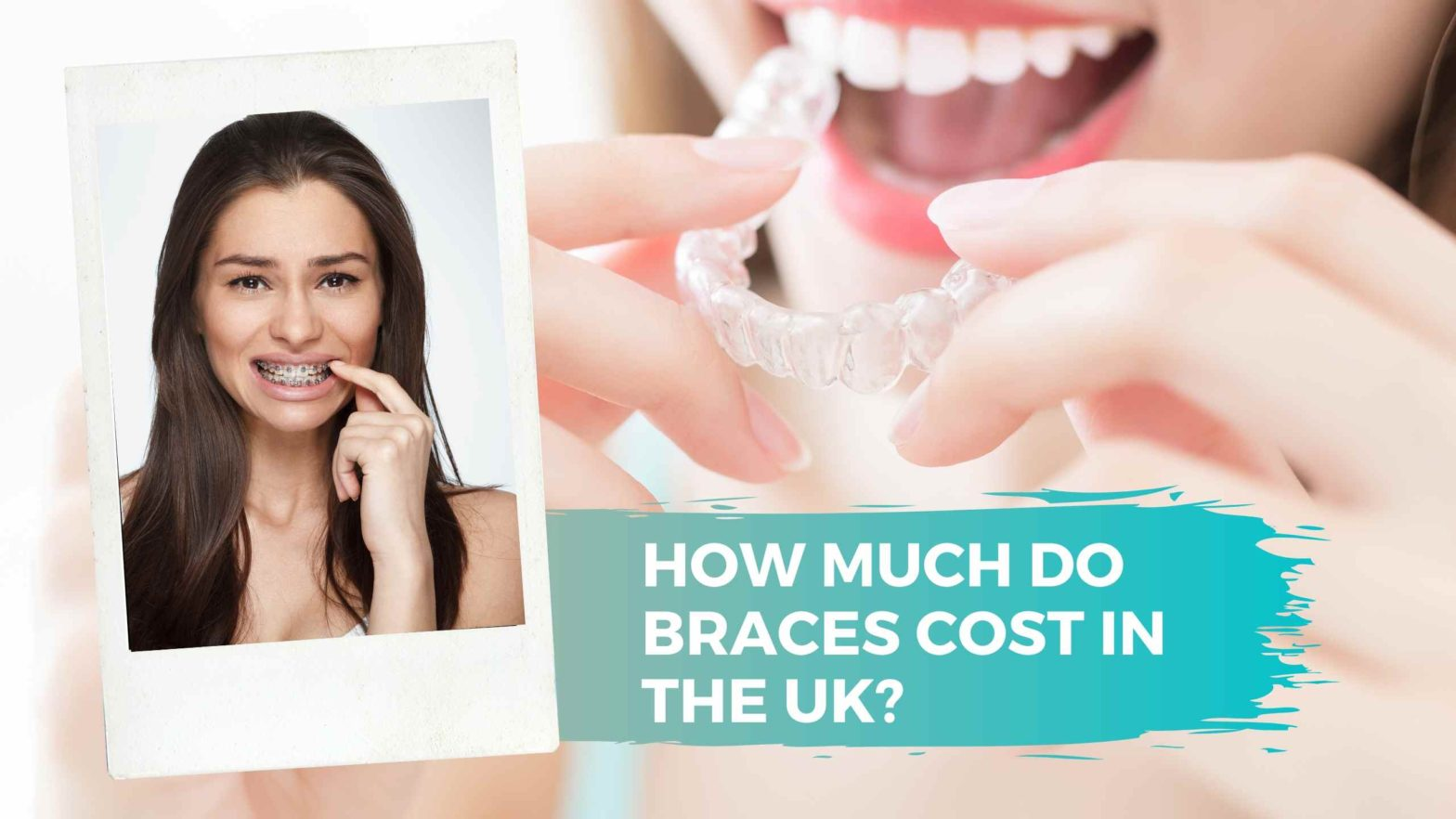 How Much Do Braces Cost In The UK