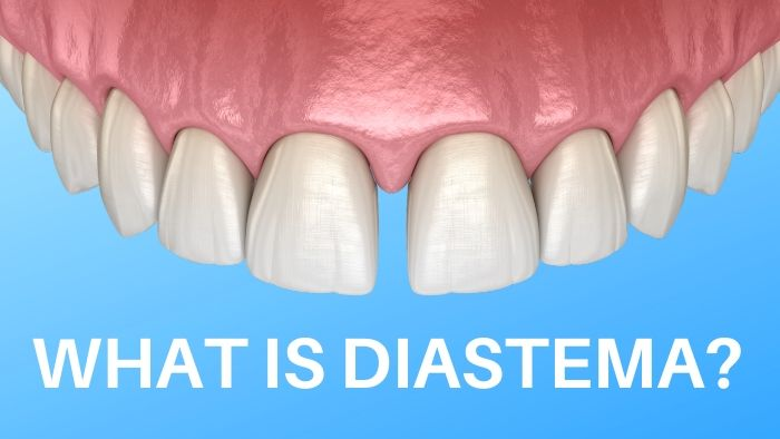 What is Diastema