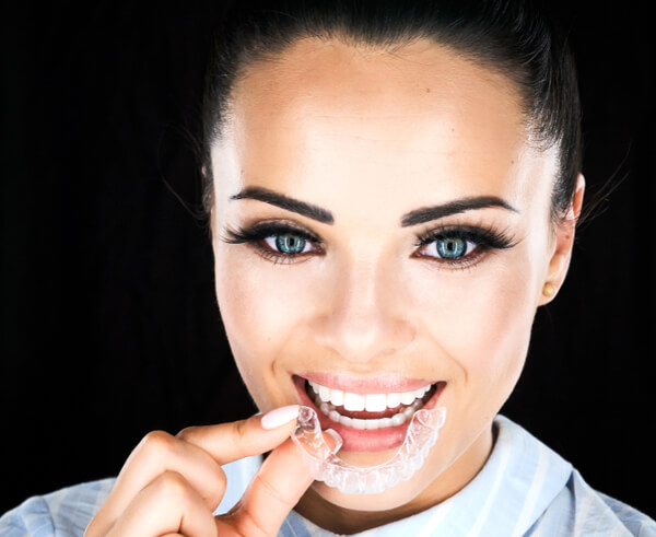 Night only Clear Aligners