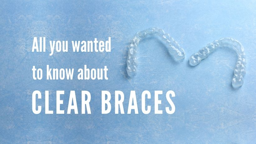 all you wanted to know about clear braces