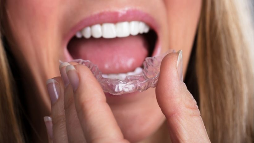 How to Avoid Teeth Relapse After Clear Aligner Treatment