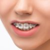 Is it Necessary to Correct An Overbite?