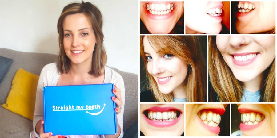 Byrony Teeth Straightening Story