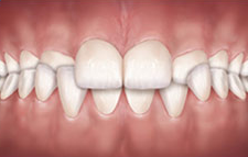 Invisible braces can correct Crossbites