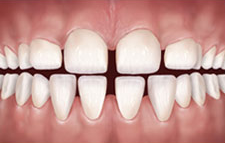 Invisible braces can close the gaps between teeth