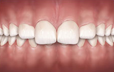 Invisible braces can correct Overbite