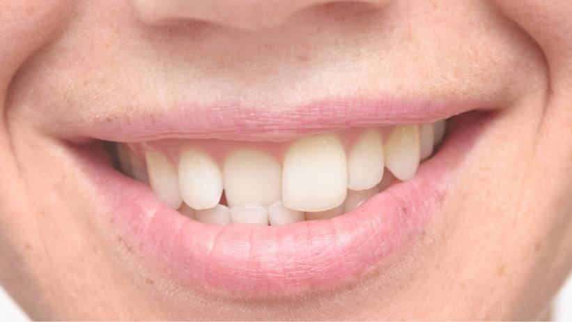 Best Options to Fix a Snaggle Tooth