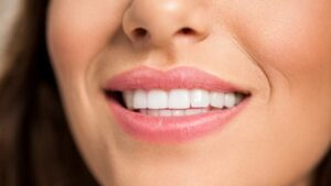 How to Straighten Teeth Quickly – Whats the Best Option