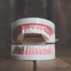 Teeth Straightening Options – How They Compare On Price