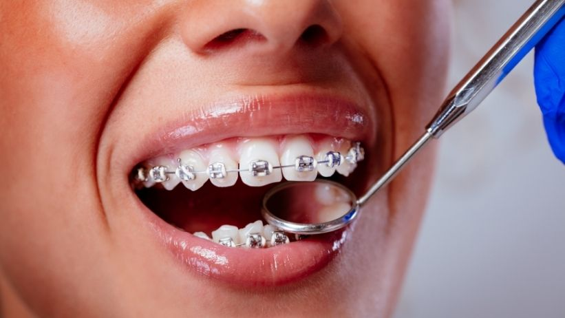 Second-Time Braces: Why Affordable Clear Aligners May Be Best for You