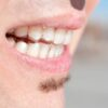 Your Common Questions About Retainers Answered!